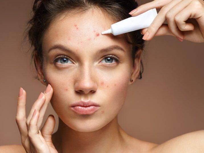 انواع درمان جوش های صورت در مجله اینترنتی مد سارابارا