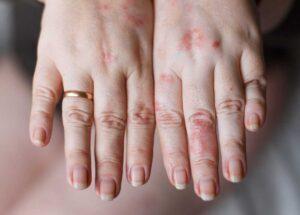 آلرژی به لباس